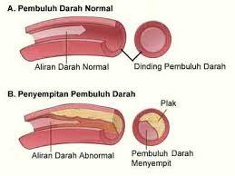 Obat Herbal Penyempitan Pembuluh Darah